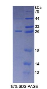 CD300C Protein - Recombinant  Immunoglobulin Superfamily, Member 16 By SDS-PAGE