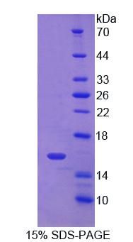 CD7 Protein - Recombinant Cluster Of Differentiation 7 By SDS-PAGE