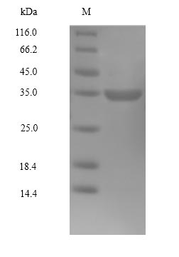 CDK4 Protein - (Tris-Glycine gel) Discontinuous SDS-PAGE (reduced) with 5% enrichment gel and 15% separation gel.