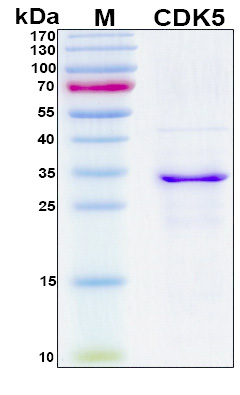 CDK5 Protein - SDS-PAGE under reducing conditions and visualized by Coomassie blue staining