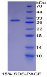 CDK9 Protein - Recombinant  Cyclin Dependent Kinase 9 By SDS-PAGE