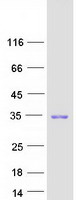 CDKN1B / p27 Kip1 Protein - Purified recombinant protein CDKN1B was analyzed by SDS-PAGE gel and Coomassie Blue Staining
