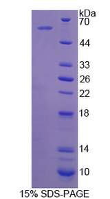 CDKN3 / KAP Protein - Recombinant Cyclin Dependent Kinase Inhibitor 3 By SDS-PAGE
