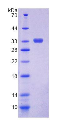 CHIT1 / Chitotriosidase Protein - Recombinant  Chitinase 1 By SDS-PAGE