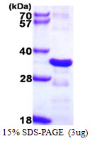 CHMP2B Protein