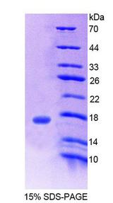 CHRNB3 Protein - Recombinant  Cholinergic Receptor, Nicotinic, Beta 3 By SDS-PAGE