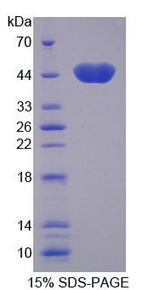 CKMT2 Protein - Recombinant  Creatine Kinase, Mitochondrial 2, Sarcomeric By SDS-PAGE