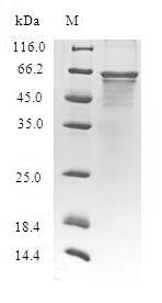 CLASP2 Protein - (Tris-Glycine gel) Discontinuous SDS-PAGE (reduced) with 5% enrichment gel and 15% separation gel.