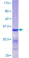 CLIC5 Protein - 12.5% SDS-PAGE Stained with Coomassie Blue.