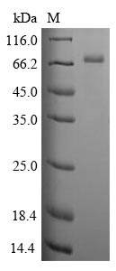 CLU / Clusterin Protein - (Tris-Glycine gel) Discontinuous SDS-PAGE (reduced) with 5% enrichment gel and 15% separation gel.