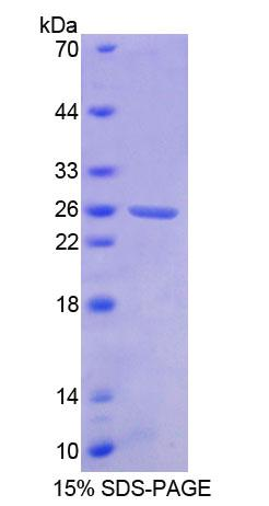 CML / BCR Protein - Recombinant  Breakpoint Cluster Region By SDS-PAGE