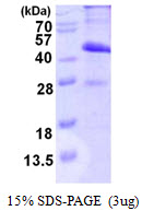 CMT2 / MAD2L1BP Protein