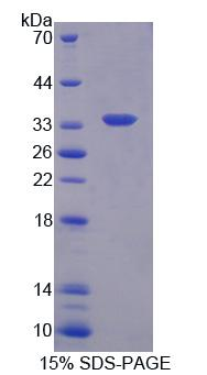CMTM1 Protein - Recombinant  CKLF Like MARVEL Transmembrane Domain Containing Protein 1 By SDS-PAGE