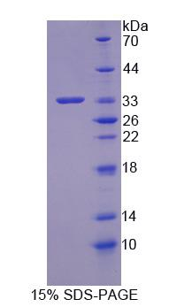 CNN1 / Calponin Protein - Recombinant  Calponin 1, Basic By SDS-PAGE