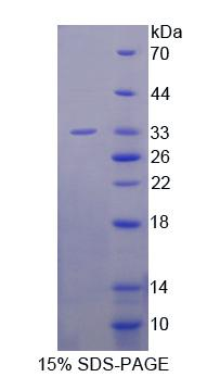 CNN2 Protein - Recombinant  Calponin 2 By SDS-PAGE