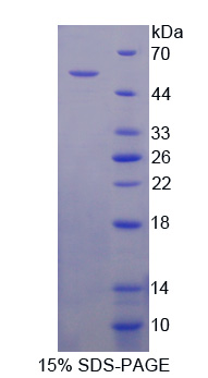 COL5A2 / Collagen V Alpha 2 Protein - Recombinant  Collagen Type V Alpha 2 By SDS-PAGE