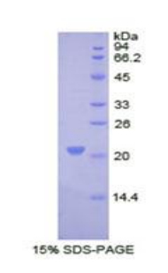 COL8A1 / Collagen VIII Alpha 1 Protein - Recombinant Collagen Type VIII Alpha 1 By SDS-PAGE