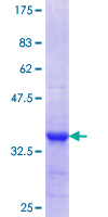 CPNE3 Protein - 12.5% SDS-PAGE Stained with Coomassie Blue.