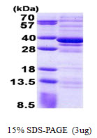 CPPED1 Protein