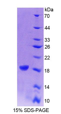 CRABP1 / CRABP Protein - Recombinant Cellular Retinoic Acid Binding Protein 1 By SDS-PAGE