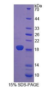 CRABP2 Protein - Recombinant Cellular Retinoic Acid Binding Protein 2 By SDS-PAGE