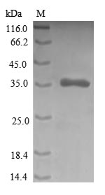 CRIP1 Protein - (Tris-Glycine gel) Discontinuous SDS-PAGE (reduced) with 5% enrichment gel and 15% separation gel.