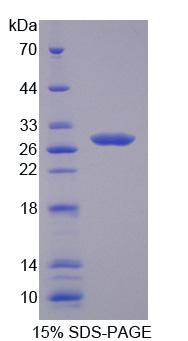 CRISP2 / TSP1 Protein - Recombinant  Cysteine Rich Secretory Protein 2 By SDS-PAGE