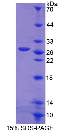 CRMP1 Protein - Recombinant Collapsin Response Mediator Protein 1 By SDS-PAGE