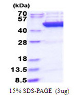 CS / Citrate Synthase Protein