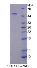 CSNK1D Protein - Recombinant Casein Kinase 1 Delta By SDS-PAGE