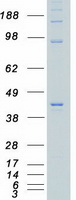 CSNK2A1 Protein - Purified recombinant protein CSNK2A1 was analyzed by SDS-PAGE gel and Coomassie Blue Staining