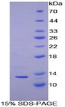 CSTA / Cystatin A Protein - Recombinant Cystatin A By SDS-PAGE