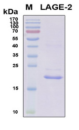 CTAG1B / NY-ESO-1 Protein - SDS-PAGE under reducing conditions and visualized by Coomassie blue staining