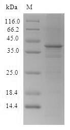 CTCF Protein - (Tris-Glycine gel) Discontinuous SDS-PAGE (reduced) with 5% enrichment gel and 15% separation gel.