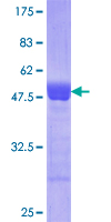 CTDP1 / FCP1 Protein - 12.5% SDS-PAGE Stained with Coomassie Blue.