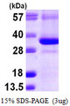 CTDSP1 / SCP1 Protein