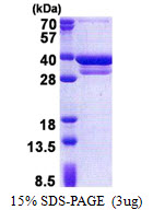 CUEDC2 Protein