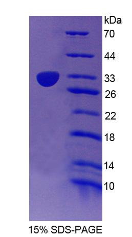 CUL1 / Cullin 1 Protein - Recombinant Cullin 1 By SDS-PAGE