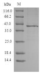 CXCR3 Protein - (Tris-Glycine gel) Discontinuous SDS-PAGE (reduced) with 5% enrichment gel and 15% separation gel.