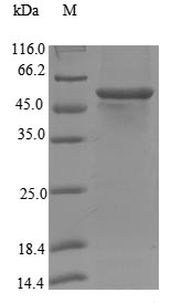 CYP17 / CYP17A1 Protein - (Tris-Glycine gel) Discontinuous SDS-PAGE (reduced) with 5% enrichment gel and 15% separation gel.