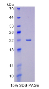 CYP3A4 / Cytochrome P450 3A4 Protein - Recombinant  Cytochrome P450 3A4 By SDS-PAGE