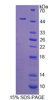 CYTH4 / PSCD4 Protein - Recombinant Cytohesin 4 By SDS-PAGE