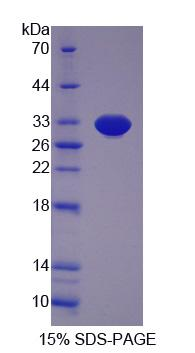 DATF1 / DIDO1 Protein - Recombinant  Death Inducer Obliterator 1 By SDS-PAGE