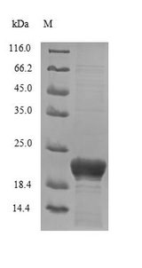DCD / Dermcidin Protein - (Tris-Glycine gel) Discontinuous SDS-PAGE (reduced) with 5% enrichment gel and 15% separation gel.