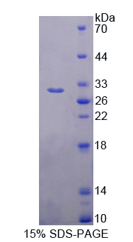 DCLK / DCLK1 Protein - Recombinant  Doublecortin Like Kinase 1 By SDS-PAGE
