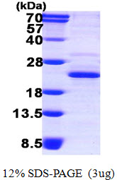 DCTPP1 / XTP3TPA Protein