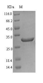 Delta-6 Desaturase / FADS2 Protein - (Tris-Glycine gel) Discontinuous SDS-PAGE (reduced) with 5% enrichment gel and 15% separation gel.