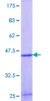Delta-6 Desaturase / FADS2 Protein - 12.5% SDS-PAGE Stained with Coomassie Blue.