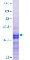 DEPDC1B Protein - 12.5% SDS-PAGE Stained with Coomassie Blue.