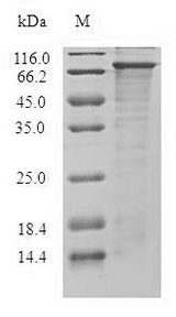 DGKE / DGK Epsilon Protein - (Tris-Glycine gel) Discontinuous SDS-PAGE (reduced) with 5% enrichment gel and 15% separation gel.